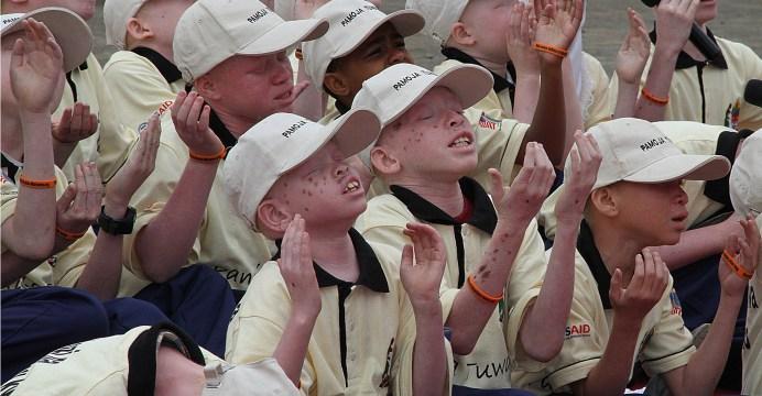 Albino-children-in-Tanzania